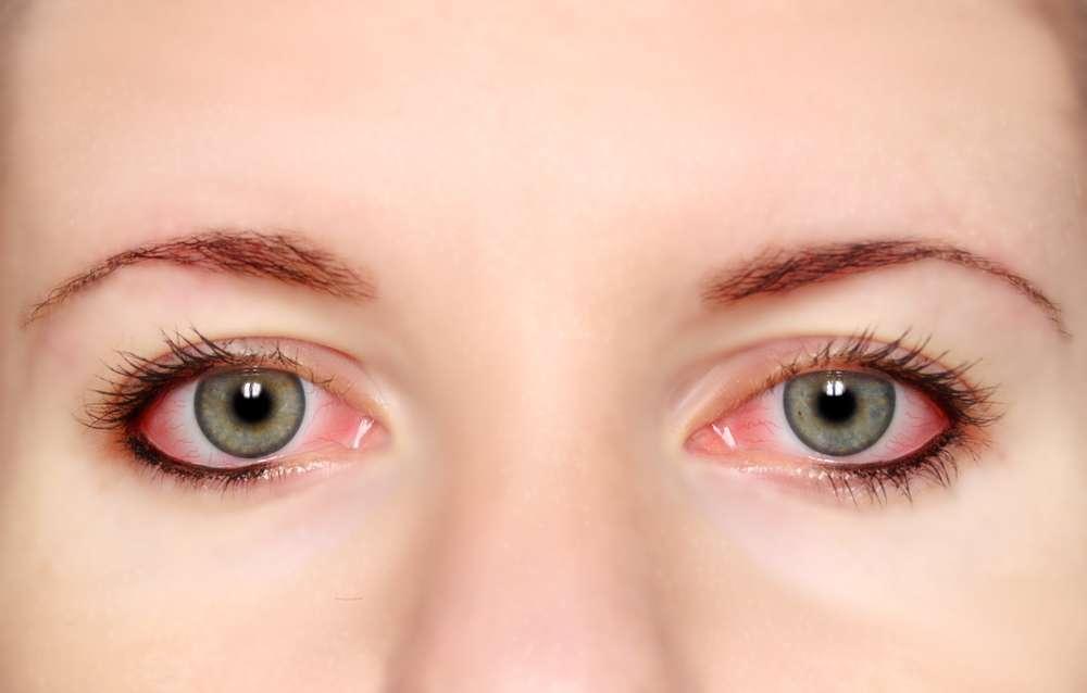 Аллергия на глазах: причины, симптомы, как выглядит, чем лечить
