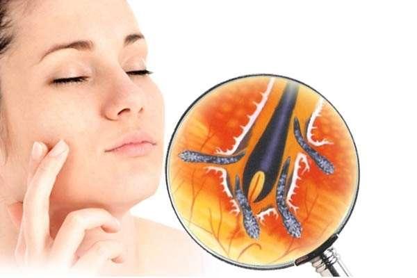Подкожный клещ на лице: лечение, фото