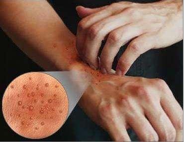Нейродермит на руках: этиология, клиника, особенности лечения
