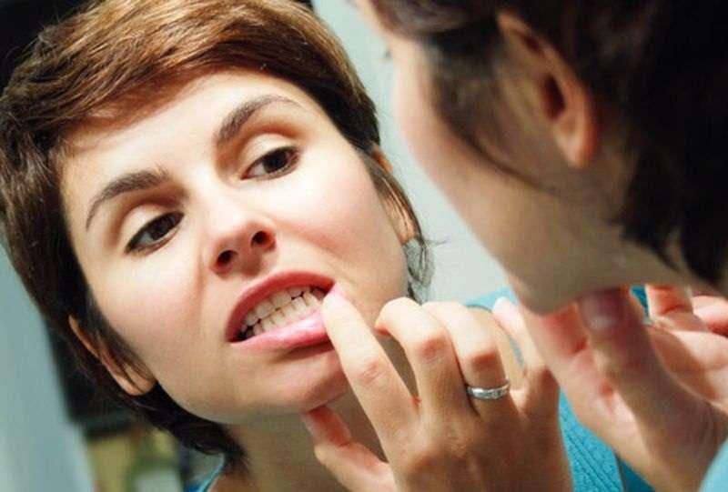 Как удалить зубной камень в домашних условиях: способы, отзывы