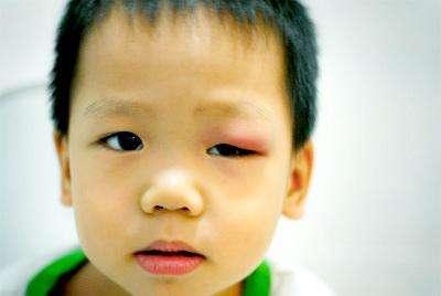 Ячмень на глазу. Симптомы и лечение