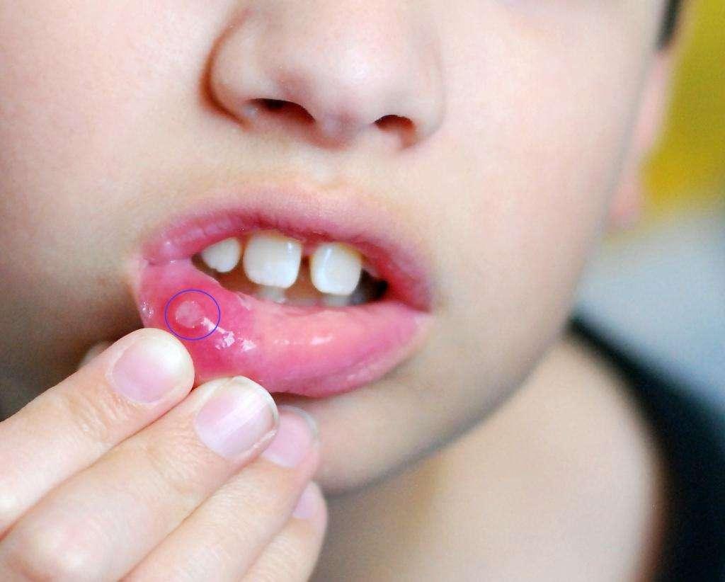 """Таблетки """"Фарингосепт"""" для детей: инструкция по применению, отзывы"""
