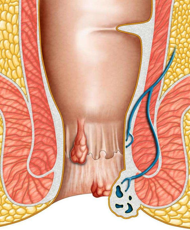 Свищ после операции: причины и методы лечения