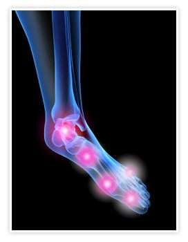 Артрит суставов стопы: причины, признаки и лечение