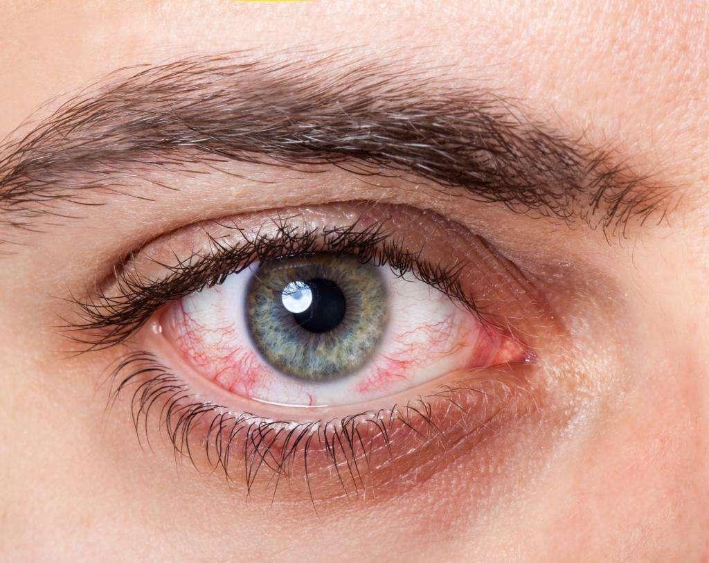 Симптомы и лечение синдрома сухих глаз: лучшие средства лечения, отзывы