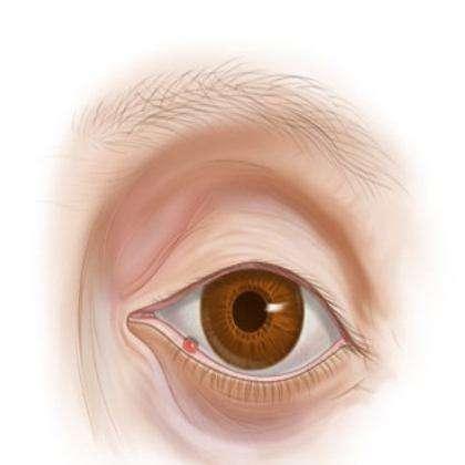 Чем лечат ячмень на глазу. Профилактика ячменя