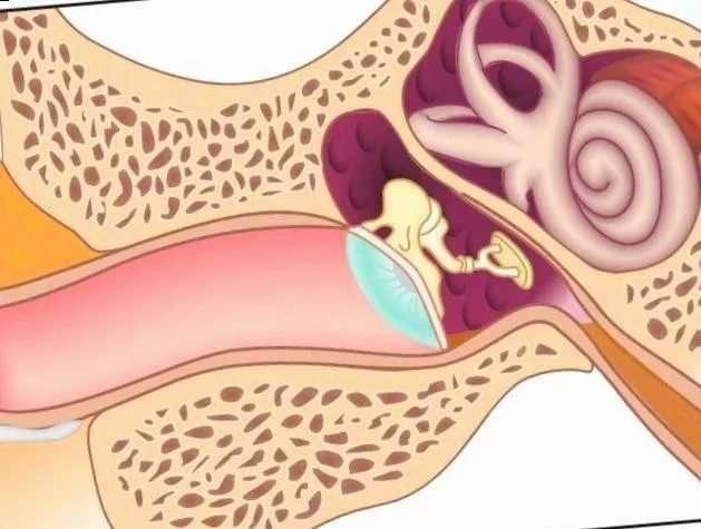 Симптомы и лечение евстахиита у взрослых и детей
