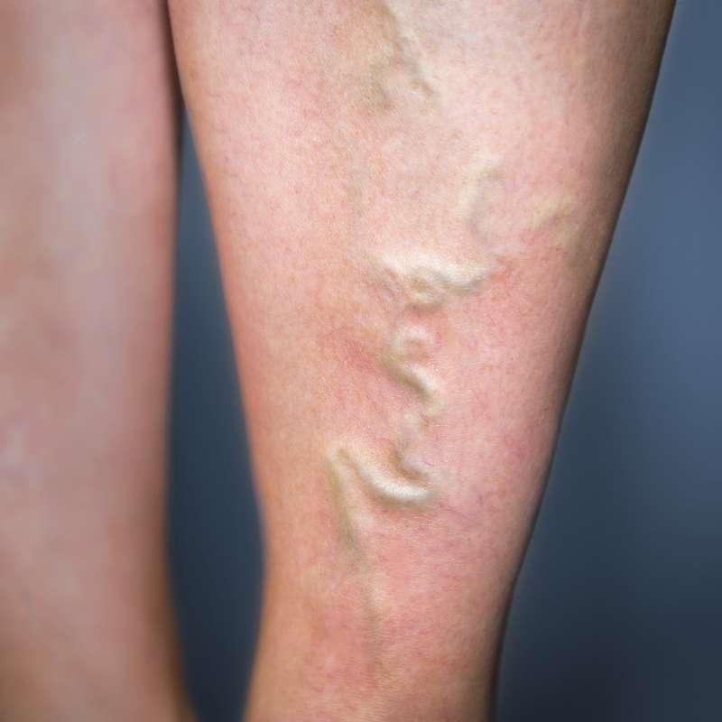 Хирургическое лечение тромбофлебита нижних конечностей