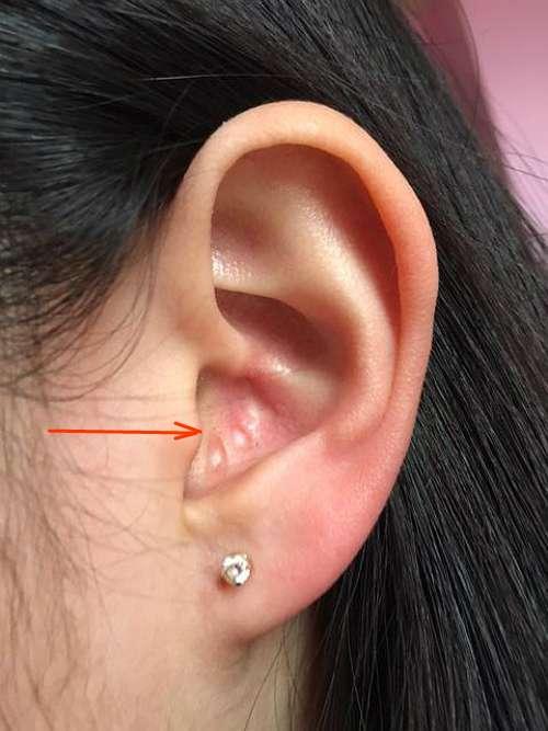 В ушах прыщи: причины, как лечить?