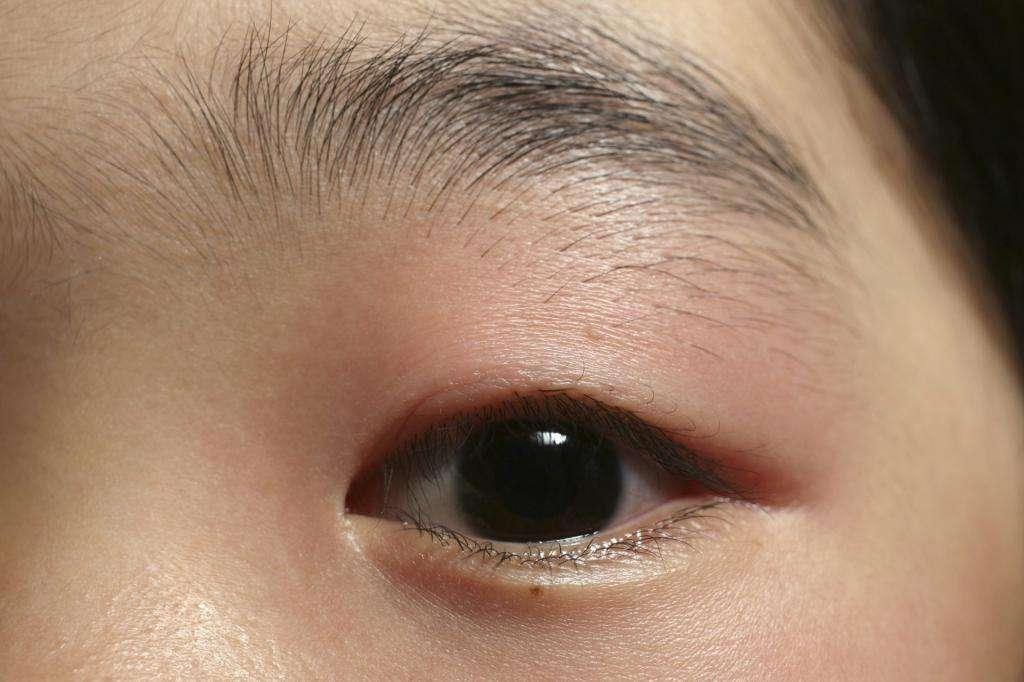 Как лечить ячмень на глазу у детей? Причины появления