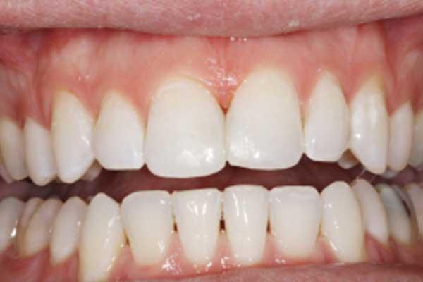 Зубные протезы на присосках: описание, фото
