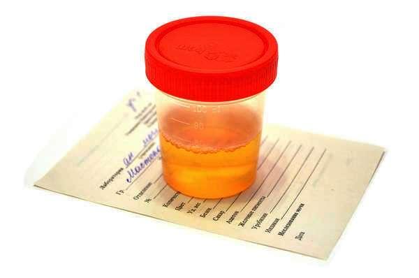 Кровь в моче при беременности: причины, лечение, советы и отзывы