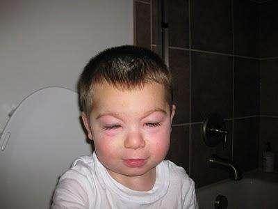 Отекший глаз у ребенка. Лечим вместе