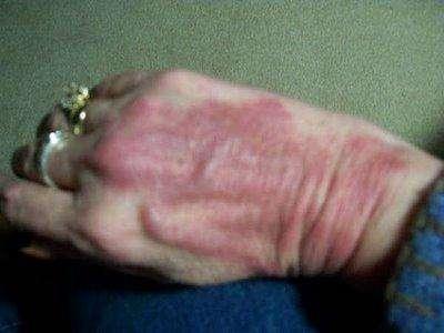 Рожистое воспаление руки (и не только)