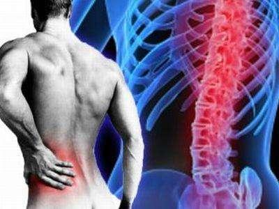 Характерные симптомы радикулита пояснично-крестцового отдела