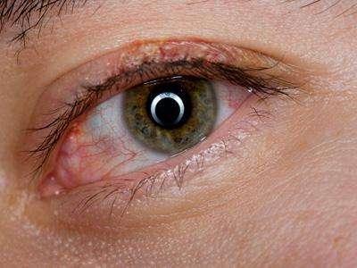 Симптомы блефарита и виды заболевания