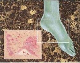 Грибок на ногах: симптомы, лечение