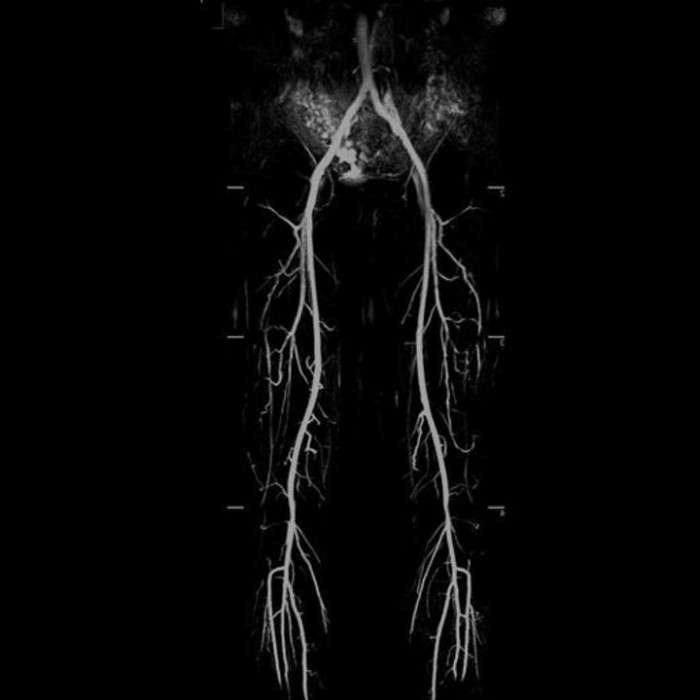Облитерирующий эндартериит нижних конечностей: причины, симптомы и лечение
