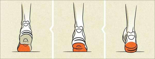 Что такое пронация стопы