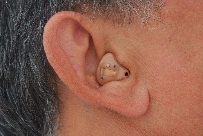 Слуховой аппарат внутриушной: достоинства и особенности использования