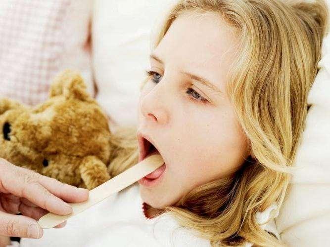 Чем лечат гнойную ангину? Полезные рекомендации